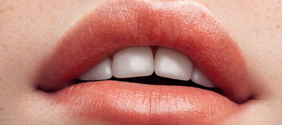 Closeup of woman's lips - not an example of lip flip - your results will vary