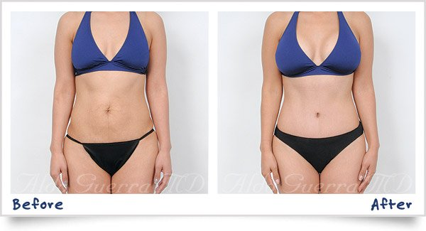 Mommy Makeover + Breast Lift photos