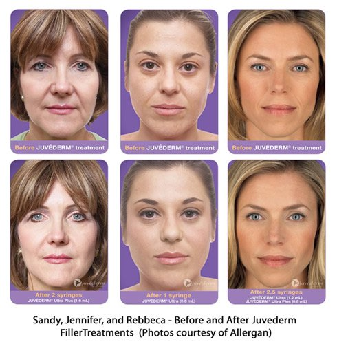 Before and After photos of Juvederm patients (photos courtesy of Allergan)
